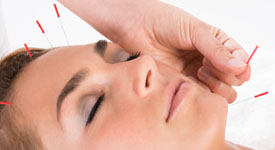 Cosmetic Facial Acupuncture Treatmnt Services